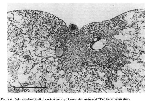 酸化プルトニウム(239Pu02)を吸引して14カ月後のマウス肺における放射線誘導線維化結節
